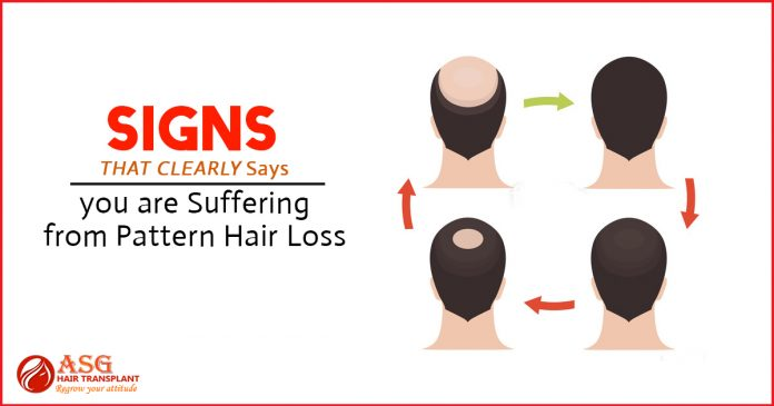 Signs That Clearly Says you are suffering from pattern hair loss
