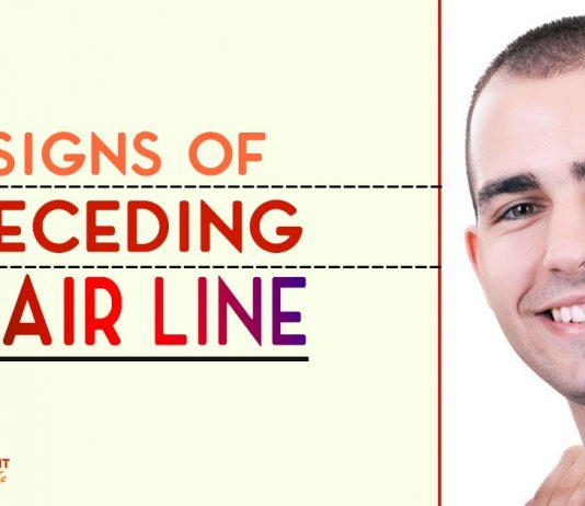 Signs of Receding Hair Line