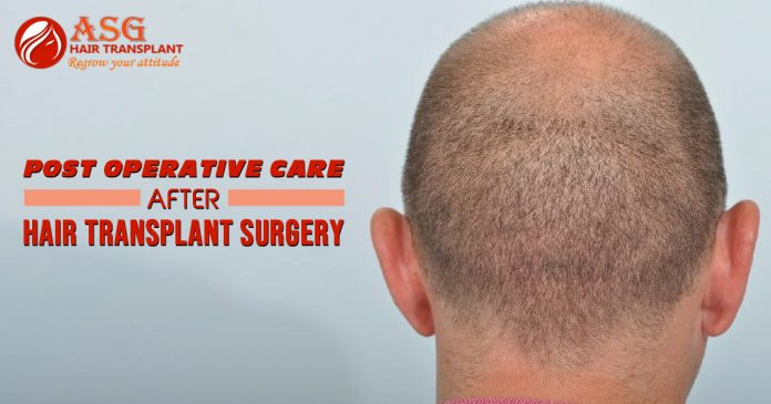 Post operative Care After Hair Transplant Surgery