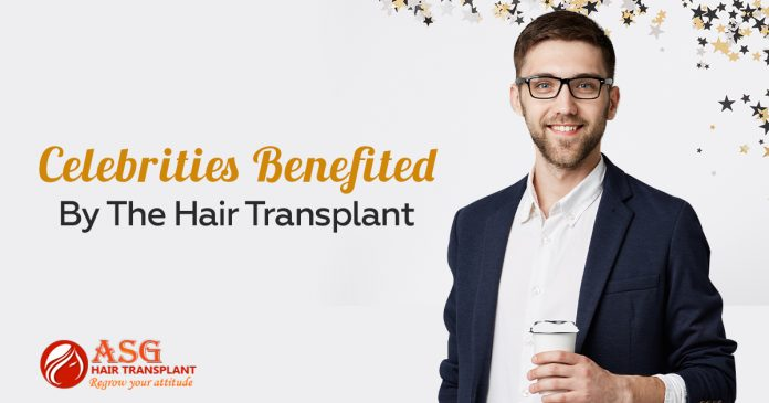 Celebrities benefited by the hair transplant