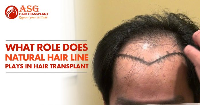 What role Does Natural Hair Line Plays in Hair Transplant