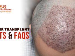 5 Hair Transplant Facts & FAQs