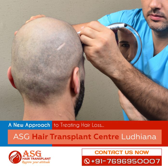A New Approach to Treating Hair Loss