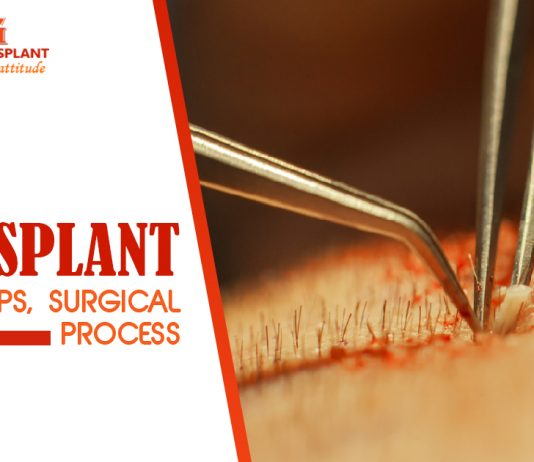 Hair Transplant - Facts, Steps, Surgical Process