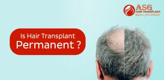 Is hair transplant permanent copy