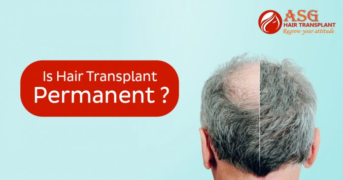 Is hair transplant permanent copy