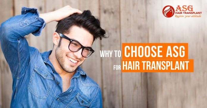 Why to Choose ASG for Hair Transplant Centre copy