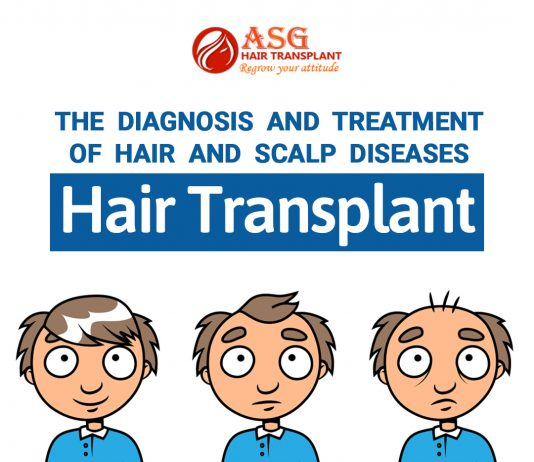 Hair transplants Is Hair Transplantation procedure leads to pain and discomfort