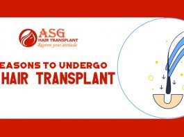 Reasons to Undergo a Hair Transplant