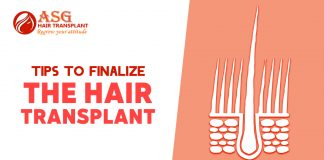 Tips to finalize the hair transplant