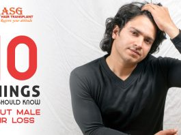 10 things you should know about male hair loss