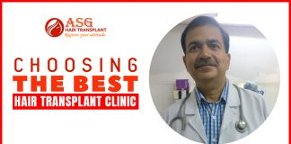 Choosing the Best Hair Transplant Clinic