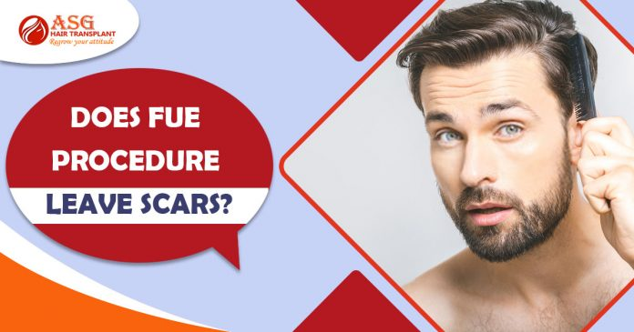 Does FUE procedure leave scars