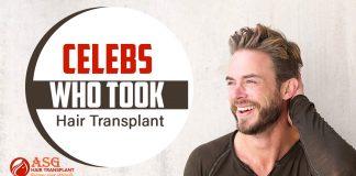 Celebs who took hair transplant Punjab