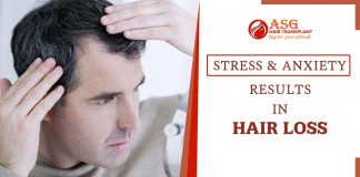 How stress and anxiety can cause hair loss issues