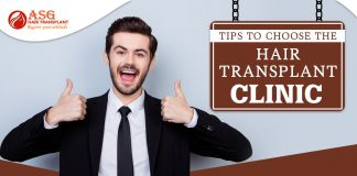 Tips to choose the hair transplant clinic