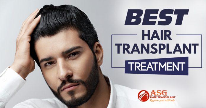 Best Hair transplant treatment Punjab
