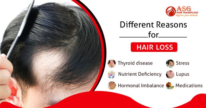 Different reasons for hair loss Punjab