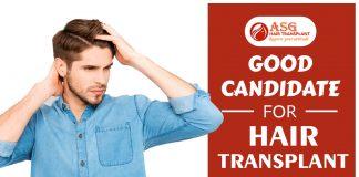 Good Candidate for hair transplant Punjab
