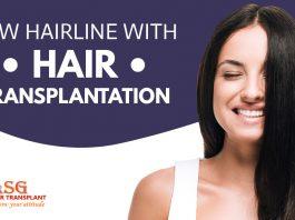 Low hairline with hair transplantation Punjab