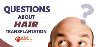 Questions about hair transplantation Punjab