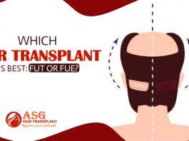 hair transplantation method is best FUT or FUE Hair Transplantation