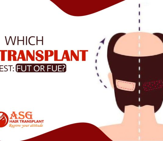 hair transplantation method is best FUT or FUE Hair Transplantation