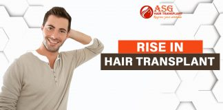 Rise in Hair Transplant
