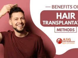 Benefits of Hair Transplantation Methods