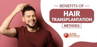 Benefits of Hair Transplantation Methods