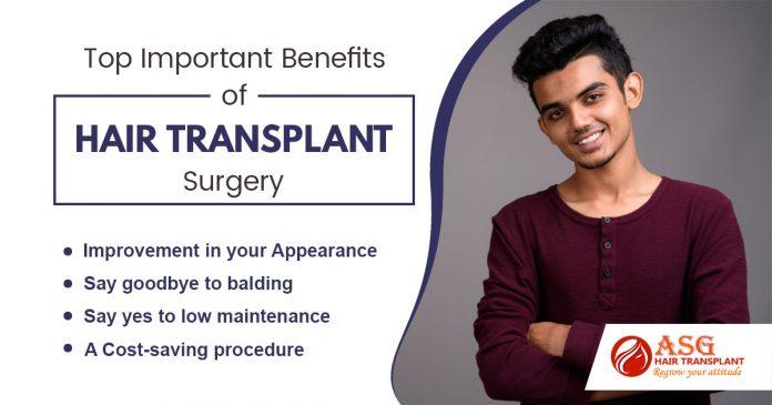 Top Important Benefits Of Hair Transplant Surgery Punjab