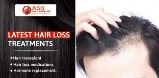 latest hair loss treatments Punjab