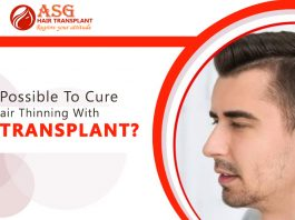 Is it possible to cure hair thinning with hair transplant