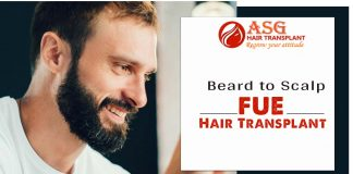 Beard to Scalp FUE Hair Transplant