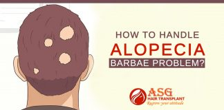 How to handle Alopecia Barbae Problem