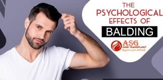 The Psychological Effects of Balding