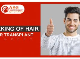 Working of hair transplant surgery