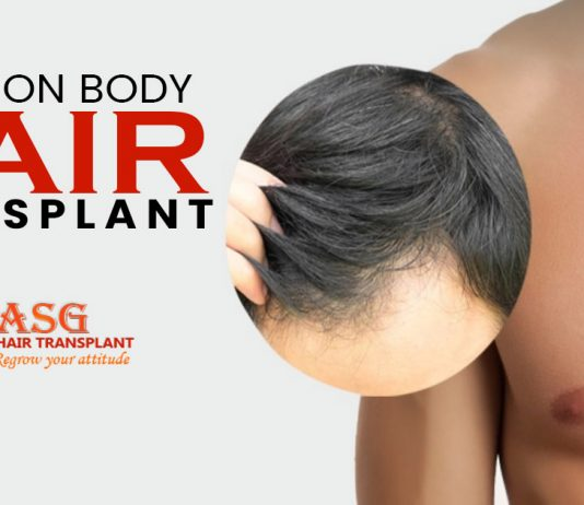 Guide on body hair transplant