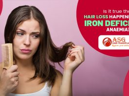 Is it true that hair loss happened due to Iron Deficiency Anaemia