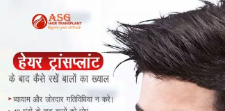 asg reduce hair loss