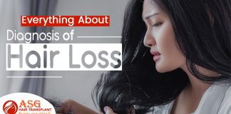 everything about the diagnosis of Hair Loss