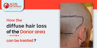 the diffuse hair loss of the donor area can be treated