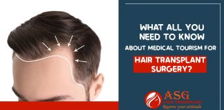What all you need to know about Medical Tourism For Hair Transplant Surgery