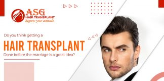 hair transplant done before the marriage
