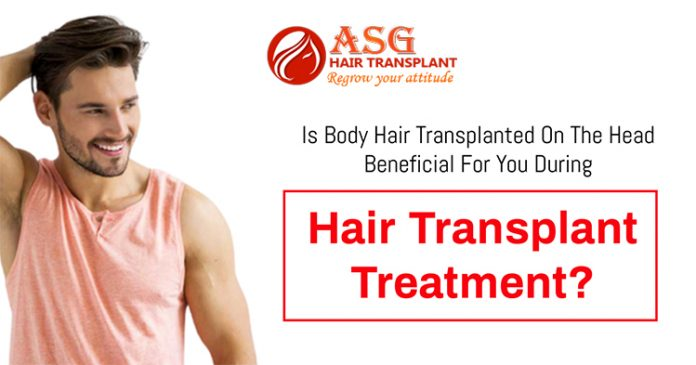 Is body hair transplanted on the head beneficial for you during hair transplant treatment