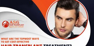 What are the topmost ways to get cost-effective hair transplant treatment