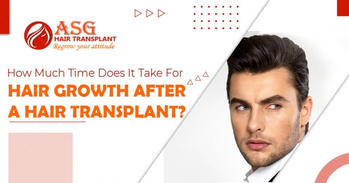 How-much-time-does-it-take-for-hair-growth-after-a-hair-transplant