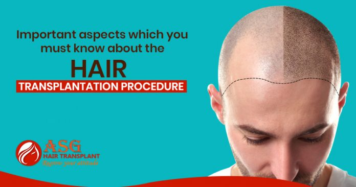 Important-aspects-which-you-must-know-about-the-hair-transplantation-procedure