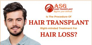 Is-the-procedure-of-hair-transplant-right-minded-treatment-for-hair-loss