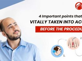 4 Important points that are vitally taken into account before the procedure